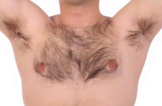 בחן את עצמך- האם הסרת שיער בלייזר מתאימה לך